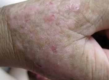 脂溢性皮炎的临床症状