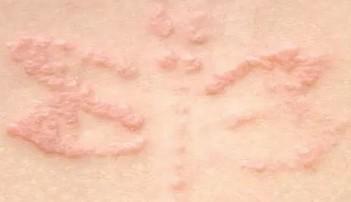脂溢性皮炎是啥症状