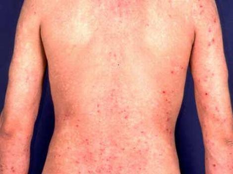 皮炎的治疗预防保健方法
