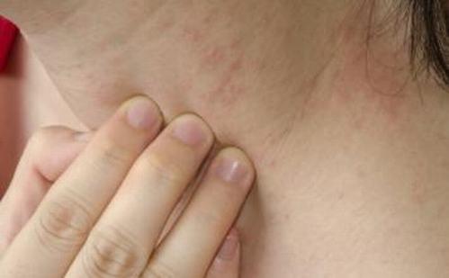 接触性皮炎如何防护