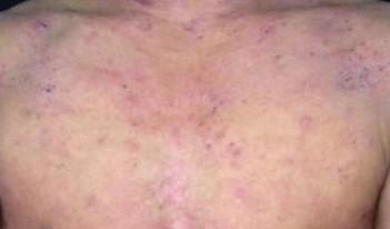 主要脂溢性皮炎的症状_脂溢性皮炎
