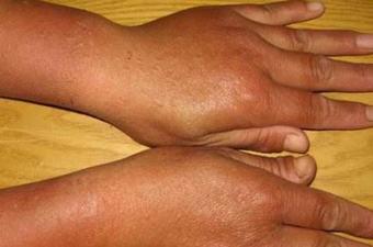 脂溢性皮炎有哪些诊断要点